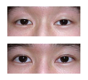 asian-eyelid-blepharoplasty.jpg